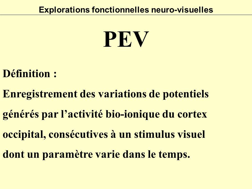 Explorations fonctionnelles neuro-visuelles Définition : Enregistrement des variations de potentiels générés par l'activité bio-ionique du cortex occi