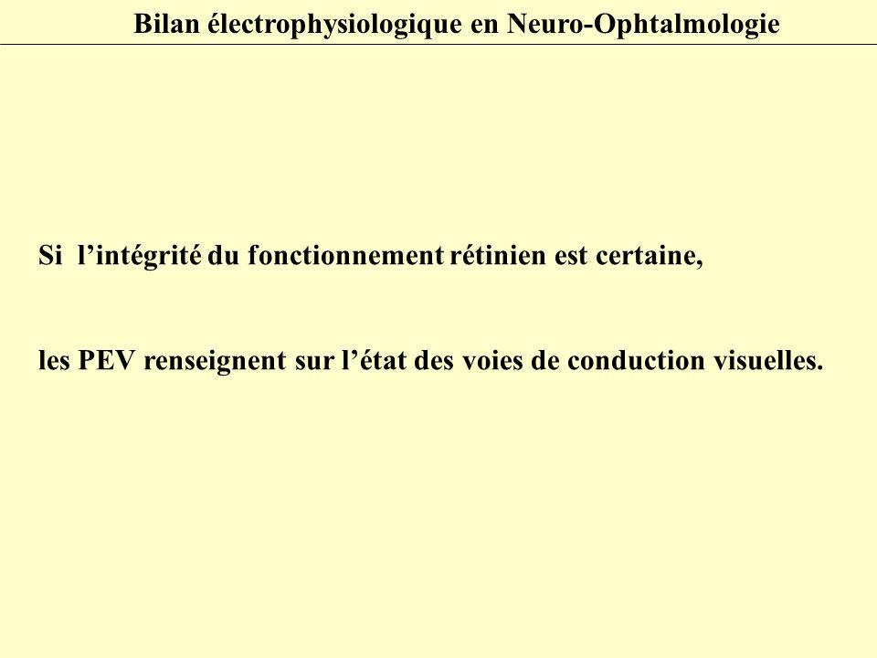 Si l'intégrité du fonctionnement rétinien est certaine, les PEV renseignent sur l'état des voies de conduction visuelles. Bilan électrophysiologique e