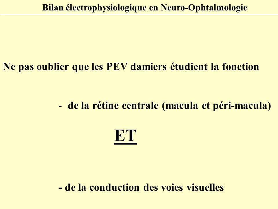 Ne pas oublier que les PEV damiers étudient la fonction - de la rétine centrale (macula et péri-macula) ET - de la conduction des voies visuelles Bila