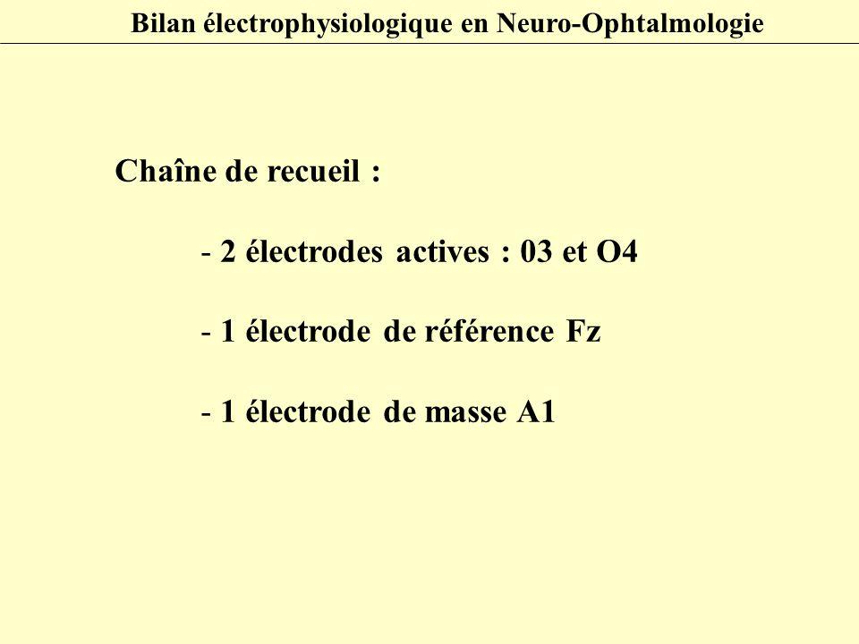 Chaîne de recueil : - 2 électrodes actives : 03 et O4 - 1 électrode de référence Fz - 1 électrode de masse A1 Bilan électrophysiologique en Neuro-Opht