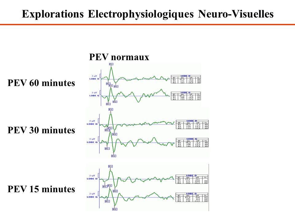 PEV normaux PEV 60 minutes PEV 30 minutes PEV 15 minutes Explorations Electrophysiologiques Neuro-Visuelles