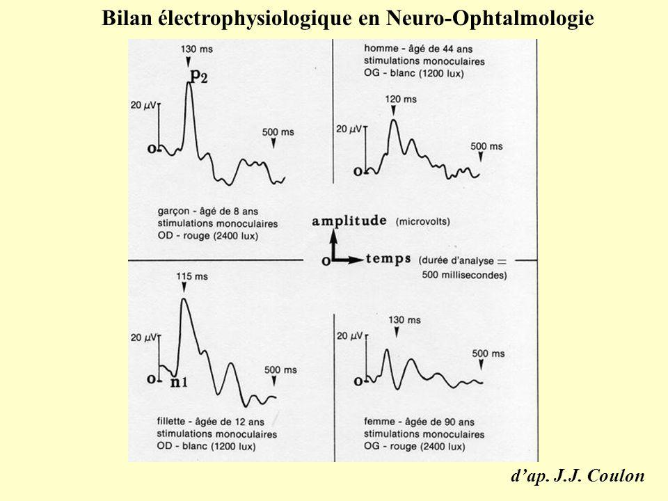 d'ap. J.J. Coulon Bilan électrophysiologique en Neuro-Ophtalmologie