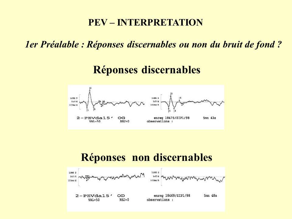 PEV – INTERPRETATION 1er Préalable : Réponses discernables ou non du bruit de fond ? Réponses discernables Réponses non discernables