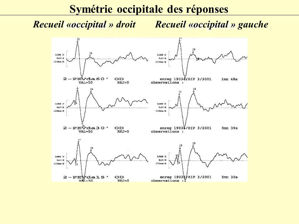 Symétrie occipitale des réponses Lobe droitLobe gauche Recueil «occipital » droit Recueil «occipital » gauche