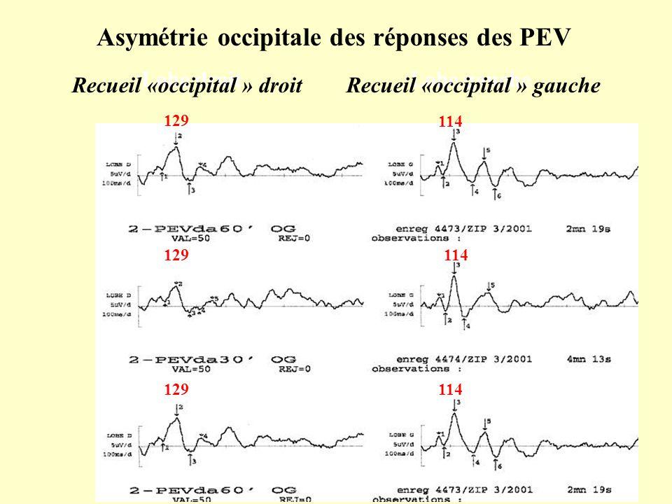 129 114 129 114 Asymétrie occipitale des réponses des PEV Lobe droitLobe gauche Recueil «occipital » droit Recueil «occipital » gauche