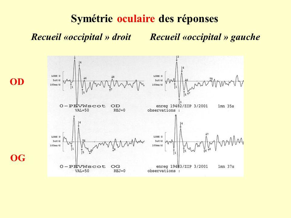 Symétrie oculaire des réponses OD OG Recueil «occipital » droit Recueil «occipital » gauche
