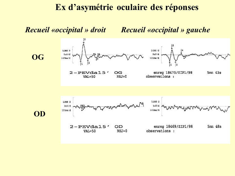 Ex d'asymétrie oculaire des réponses OD OG Recueil «occipital » droit Recueil «occipital » gauche