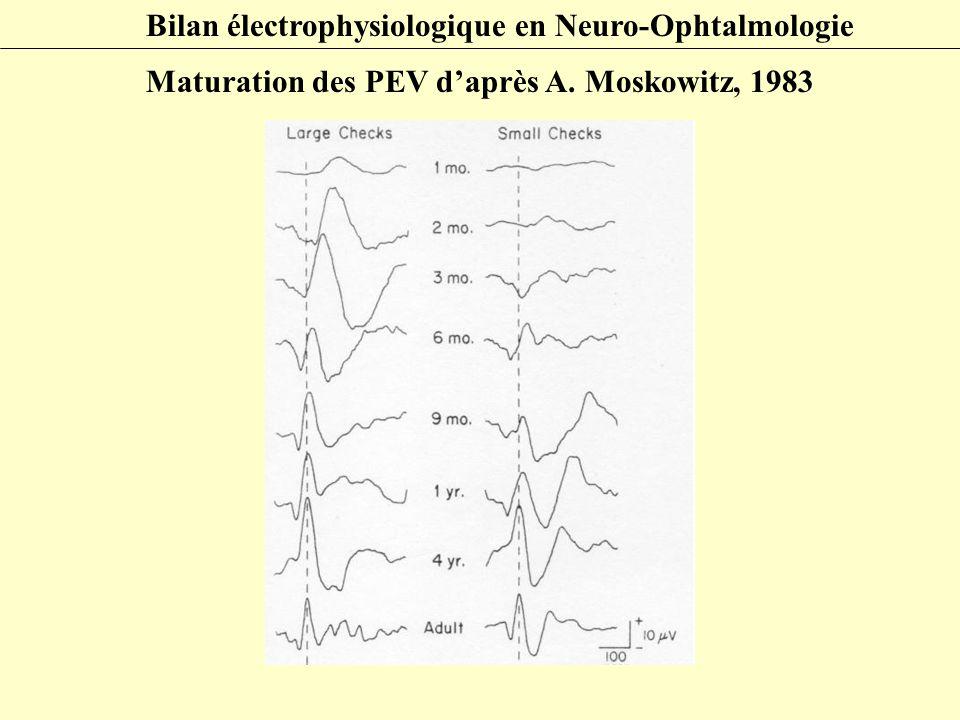 Bilan électrophysiologique en Neuro-Ophtalmologie Maturation des PEV d'après A. Moskowitz, 1983