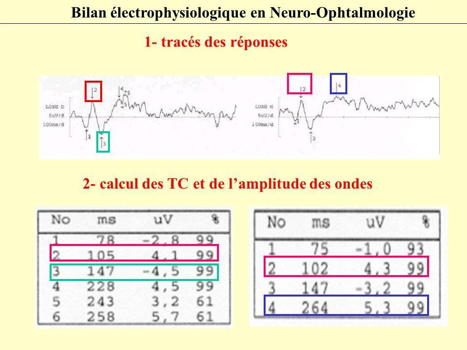 Bilan électrophysiologique en Neuro-Ophtalmologie 1- tracés des réponses 2- calcul des TC et de l'amplitude des ondes
