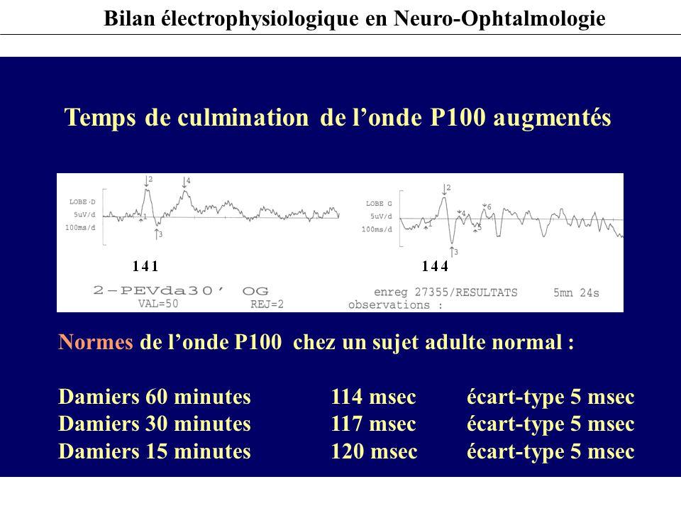 Bilan électrophysiologique en Neuro-Ophtalmologie PEV – INTERPRETATION Temps de culmination de l'onde P100 augmentés Normes de l'onde P100 chez un suj