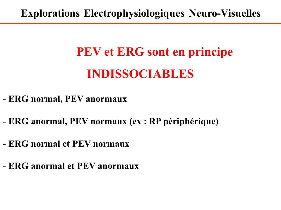 PEV et ERG sont en principe INDISSOCIABLES - ERG normal, PEV anormaux - ERG anormal, PEV normaux (ex : RP périphérique) - ERG normal et PEV normaux -