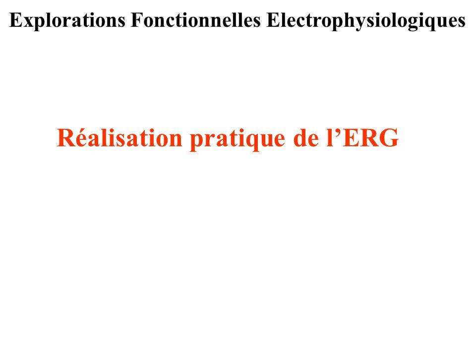 Explorations Fonctionnelles Electrophysiologiques Réalisation pratique de l'ERG