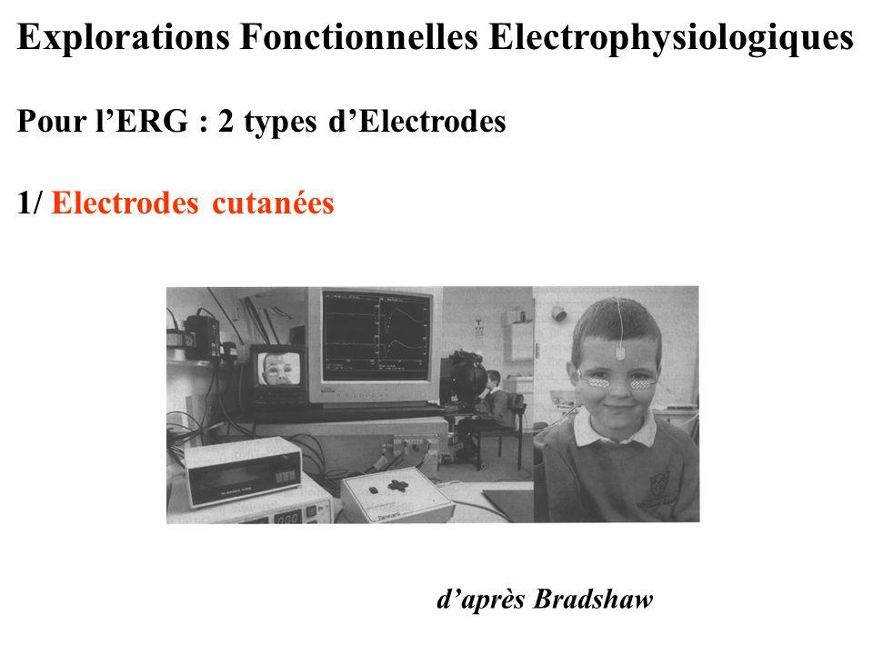 Explorations Fonctionnelles Electrophysiologiques Pour l'ERG : 2 types d'Electrodes 1/ Electrodes cutanées d'après Bradshaw