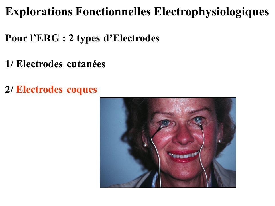 Explorations Fonctionnelles Electrophysiologiques Pour l'ERG : 2 types d'Electrodes 1/ Electrodes cutanées 2/ Electrodes coques