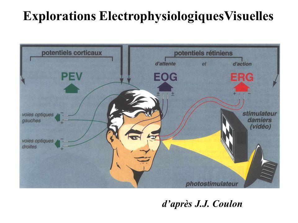 Explorations ElectrophysiologiquesVisuelles d'après J.J. Coulon