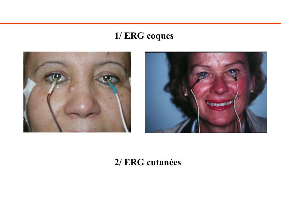 1/ ERG coques 2/ ERG cutanées