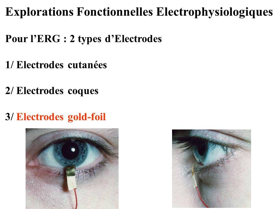 Explorations Fonctionnelles Electrophysiologiques Pour l'ERG : 2 types d'Electrodes 1/ Electrodes cutanées 2/ Electrodes coques 3/ Electrodes gold-foi
