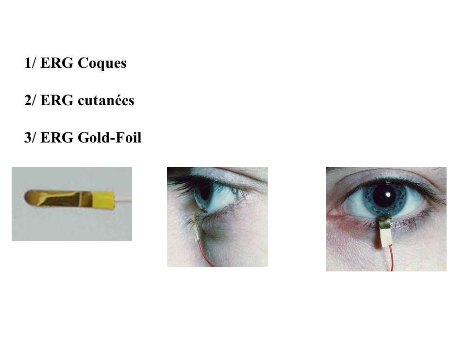 1/ ERG Coques 2/ ERG cutanées 3/ ERG Gold-Foil