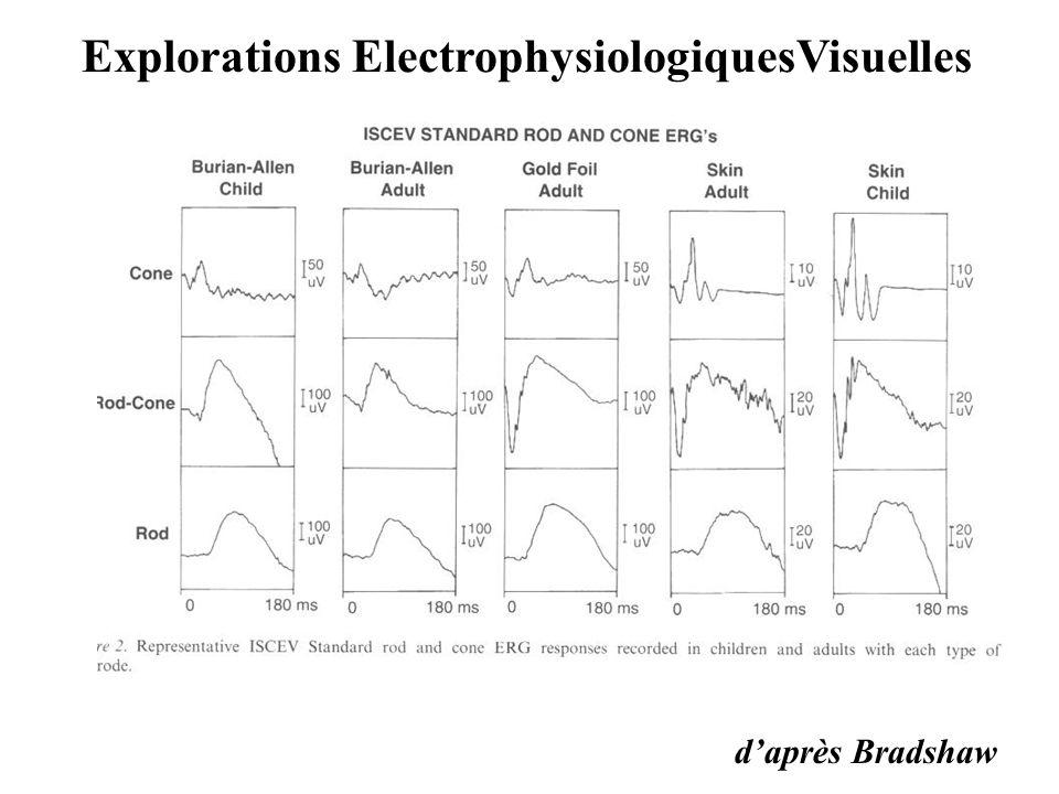 Explorations ElectrophysiologiquesVisuelles d'après Bradshaw