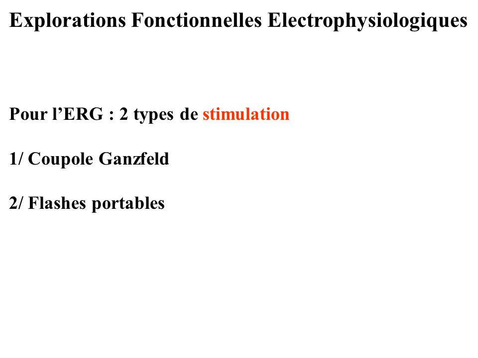 Explorations Fonctionnelles Electrophysiologiques Pour l'ERG : 2 types de stimulation 1/ Coupole Ganzfeld 2/ Flashes portables
