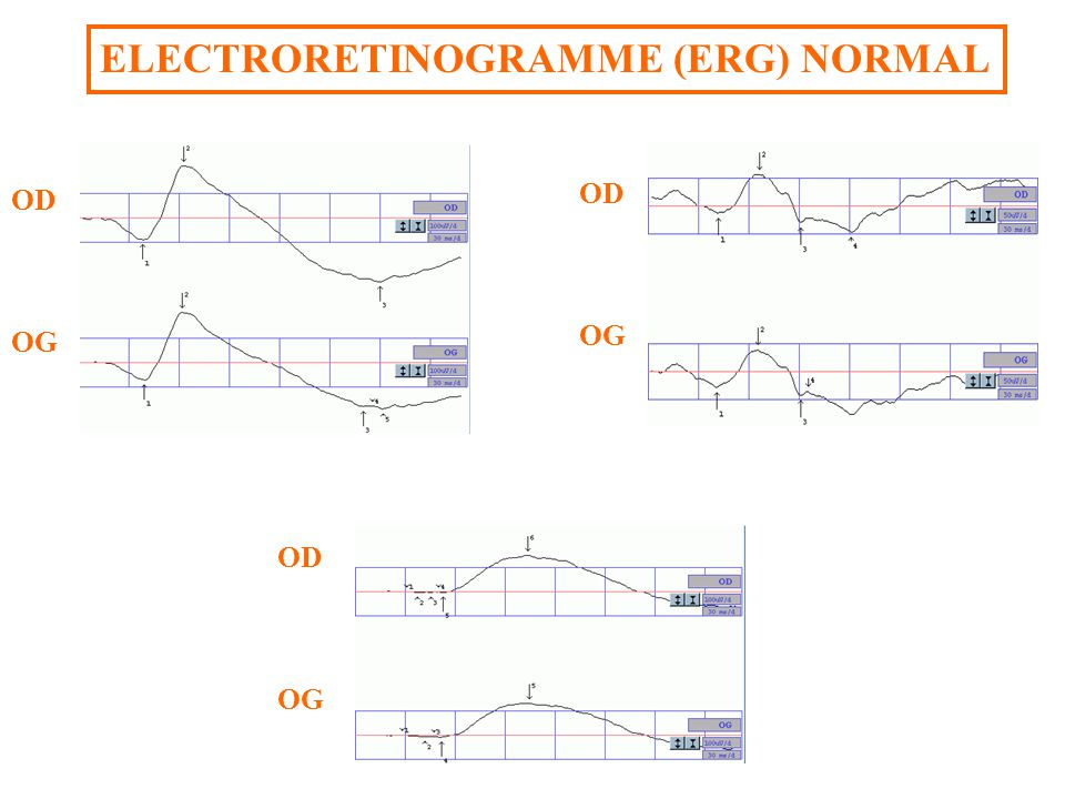 ELECTRORETINOGRAMME (ERG) NORMAL OD OG OD OG Flashes « blancs »Flashes « rouges » OD OG Flashes « bleus »