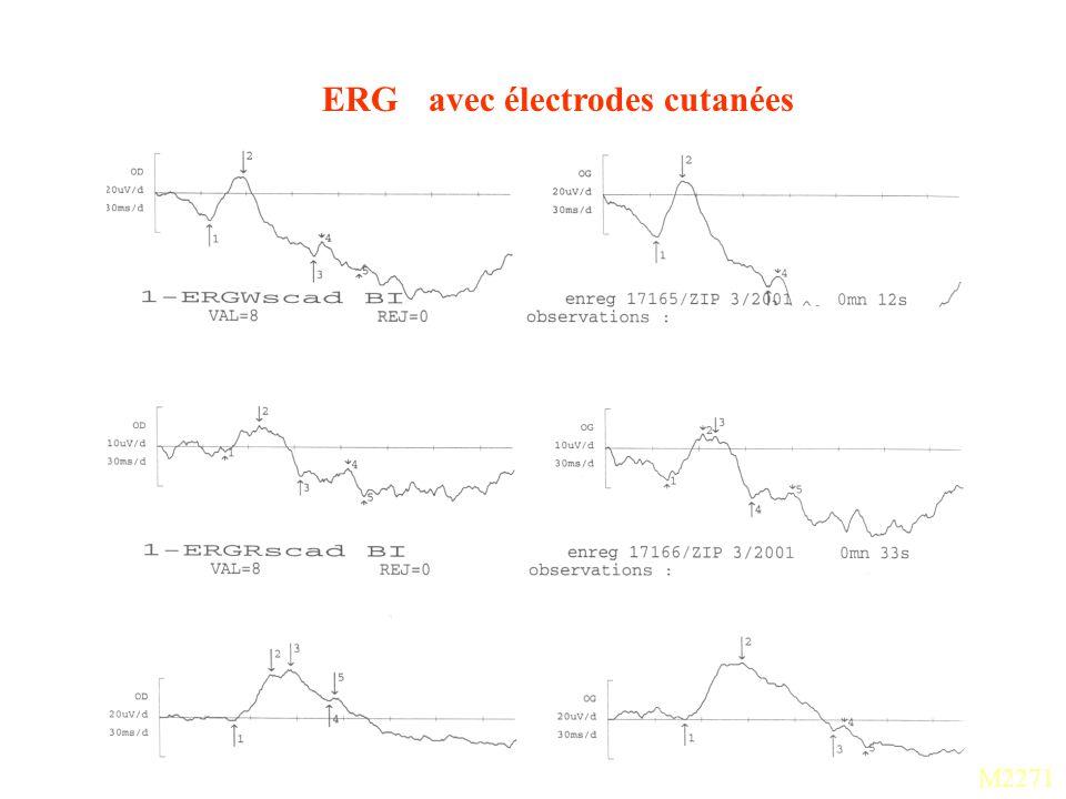 ERG avec électrodes cutanées M2271
