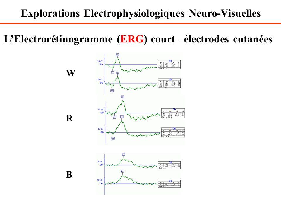 L'Electrorétinogramme (ERG) court –électrodes cutanées WRBWRB Explorations Electrophysiologiques Neuro-Visuelles