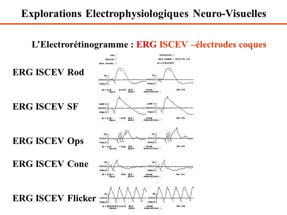 L'Electrorétinogramme : ERG ISCEV –électrodes coques ERG ISCEV Rod ERG ISCEV SF ERG ISCEV Ops ERG ISCEV Cone ERG ISCEV Flicker Explorations Electrophy