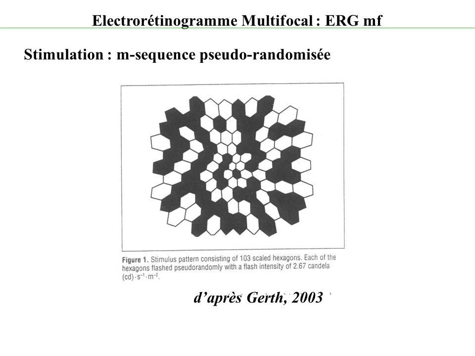 d'après Gerth, 2003 Electrorétinogramme Multifocal : ERG mf Stimulation : m-sequence pseudo-randomisée