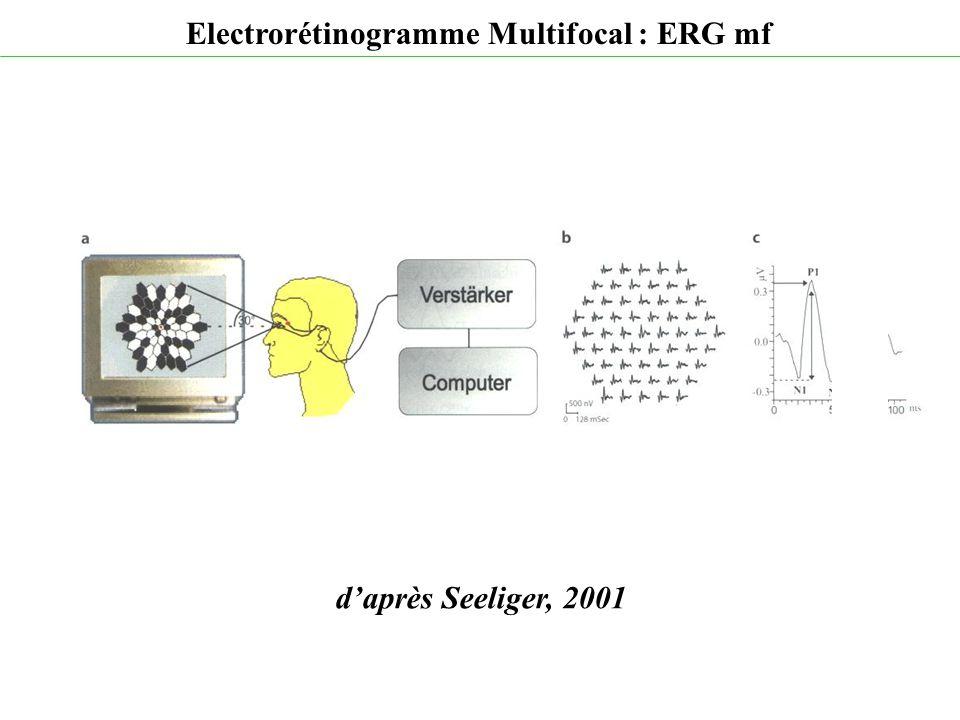 d'après Seeliger, 2001 Electrorétinogramme Multifocal : ERG mf