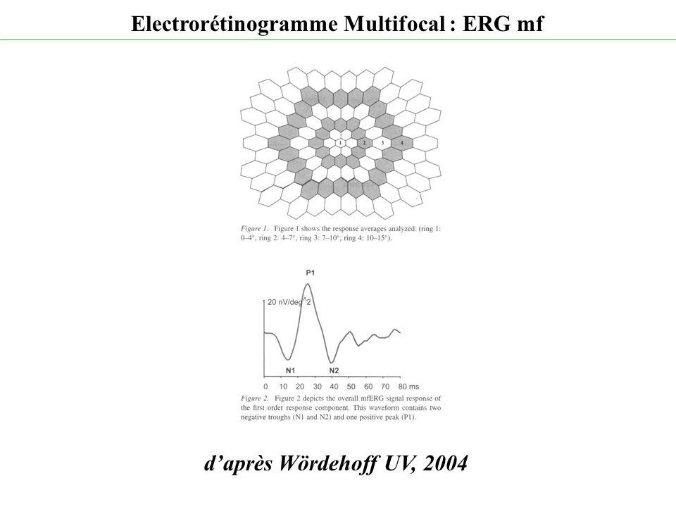 d'après Wördehoff UV, 2004 Electrorétinogramme Multifocal : ERG mf