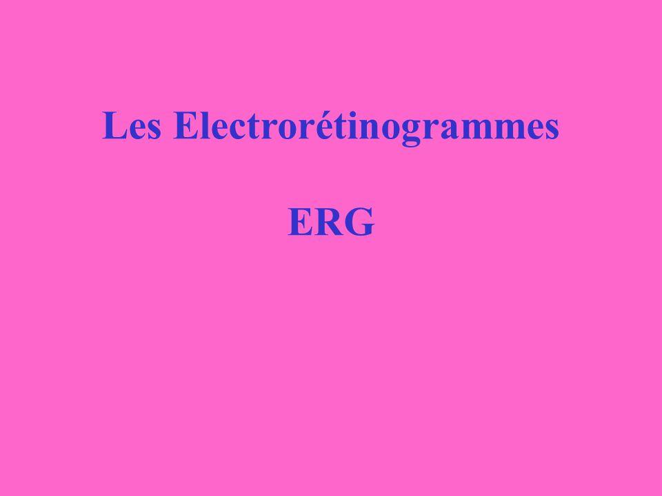 Les Electrorétinogrammes ERG
