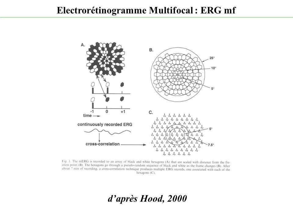 d'après Hood, 2000 Electrorétinogramme Multifocal : ERG mf