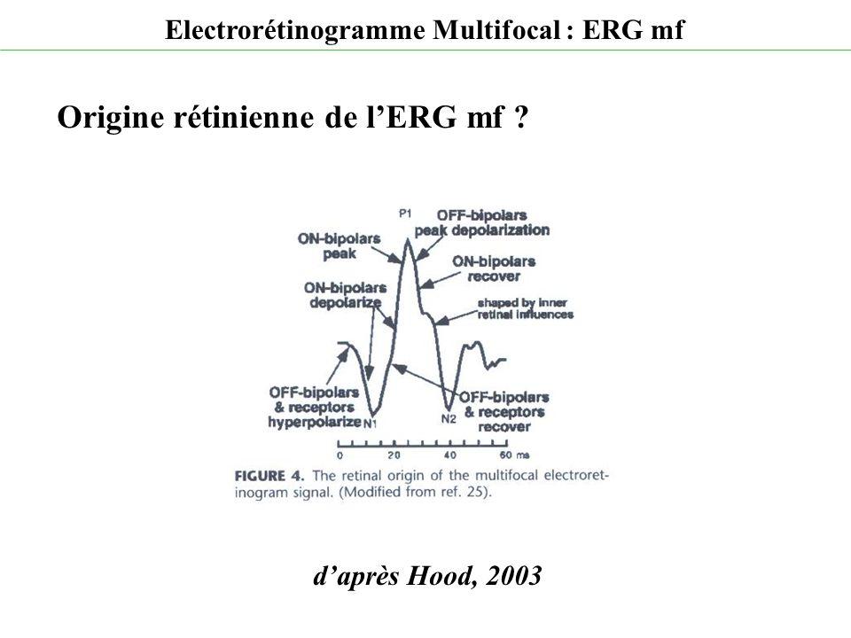 d'après Hood, 2003 Electrorétinogramme Multifocal : ERG mf Origine rétinienne de l'ERG mf ?