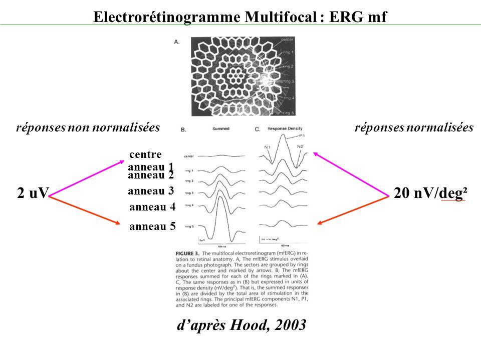 d'après Hood, 2003 Electrorétinogramme Multifocal : ERG mf 20 nV/deg²2 uV réponses non normaliséesréponses normalisées anneau 1 anneau 2 anneau 3 anne