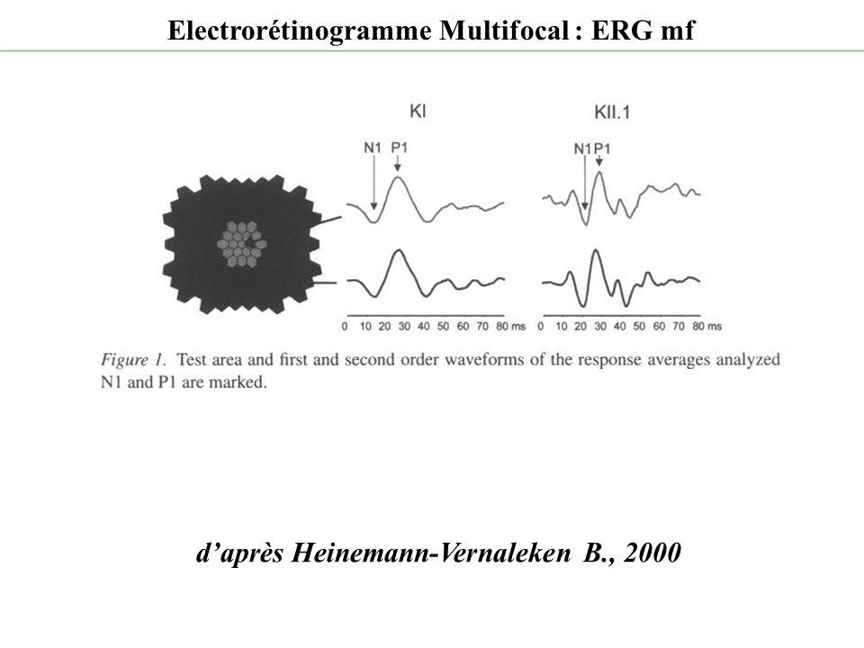 d'après Heinemann-Vernaleken B., 2000 Electrorétinogramme Multifocal : ERG mf