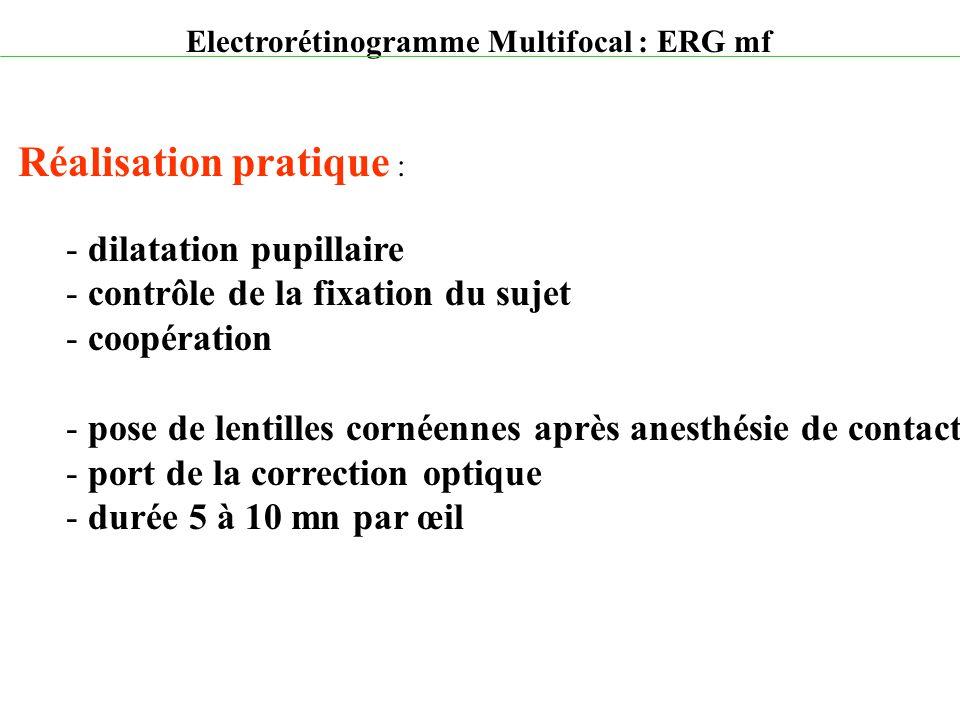 Electrorétinogramme Multifocal : ERG mf Réalisation pratique : - dilatation pupillaire - contrôle de la fixation du sujet - coopération - pose de lent