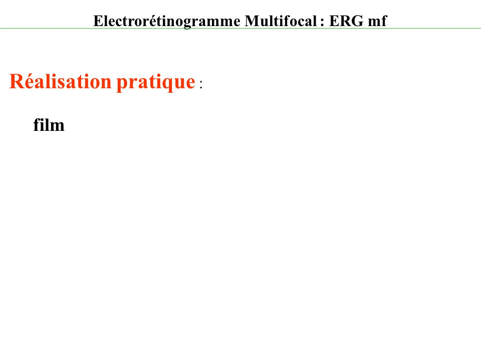 Electrorétinogramme Multifocal : ERG mf Réalisation pratique : film