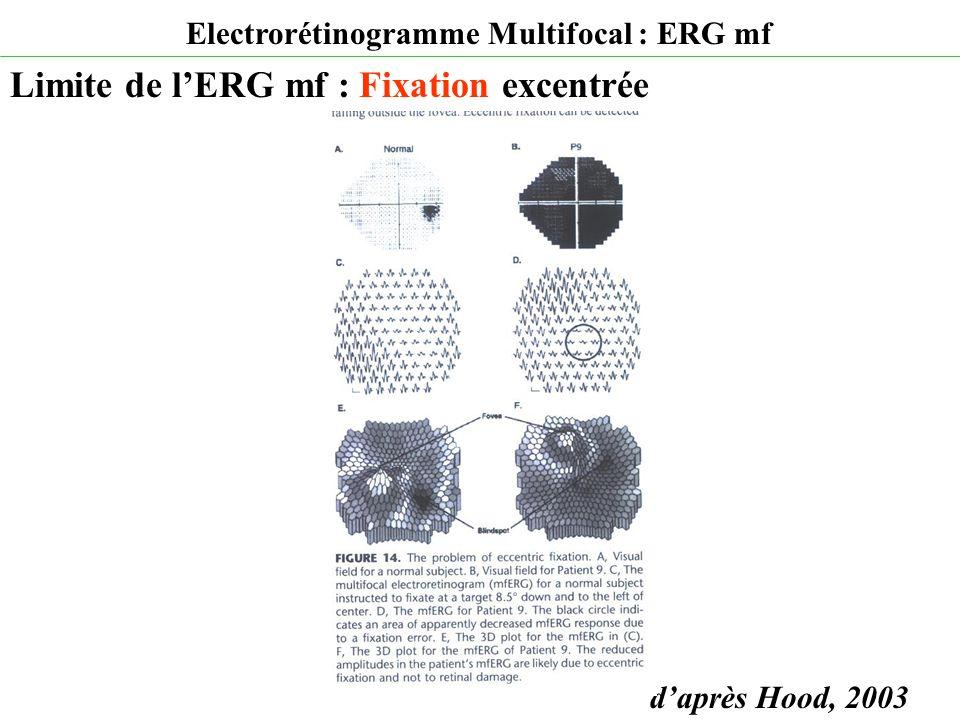 d'après Hood, 2003 Electrorétinogramme Multifocal : ERG mf Limite de l'ERG mf : Fixation excentrée