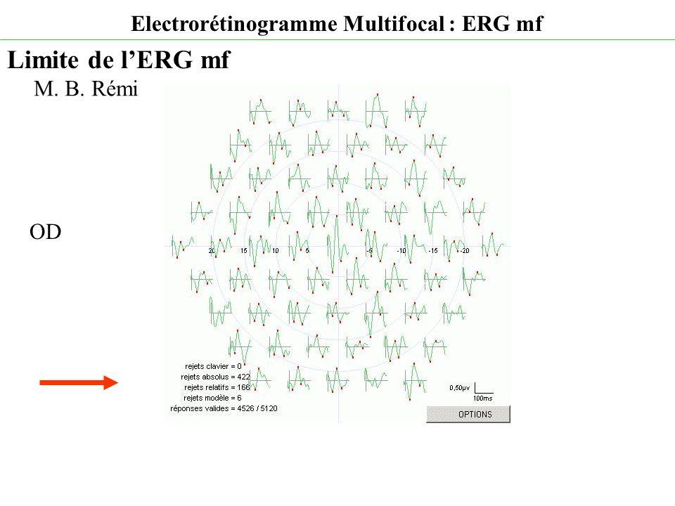 Electrorétinogramme Multifocal : ERG mf Limite de l'ERG mf M. B. Rémi OD