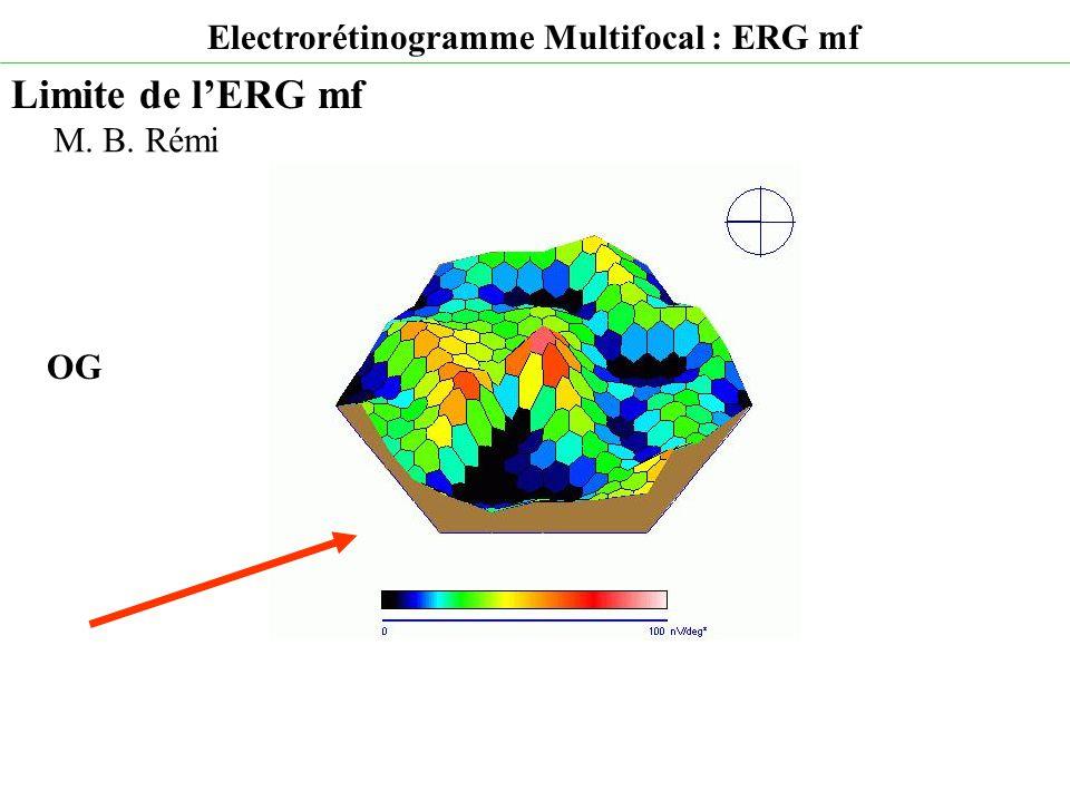 Electrorétinogramme Multifocal : ERG mf Limite de l'ERG mf M. B. Rémi OG