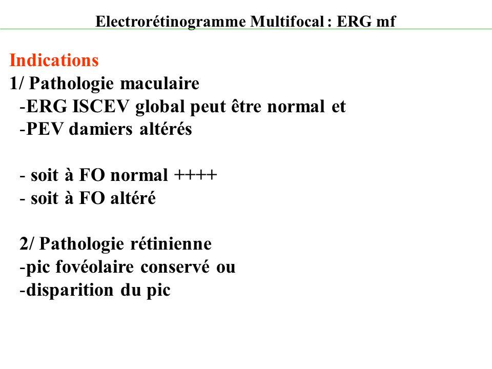 Electrorétinogramme Multifocal : ERG mf Indications 1/ Pathologie maculaire -ERG ISCEV global peut être normal et -PEV damiers altérés - soit à FO nor