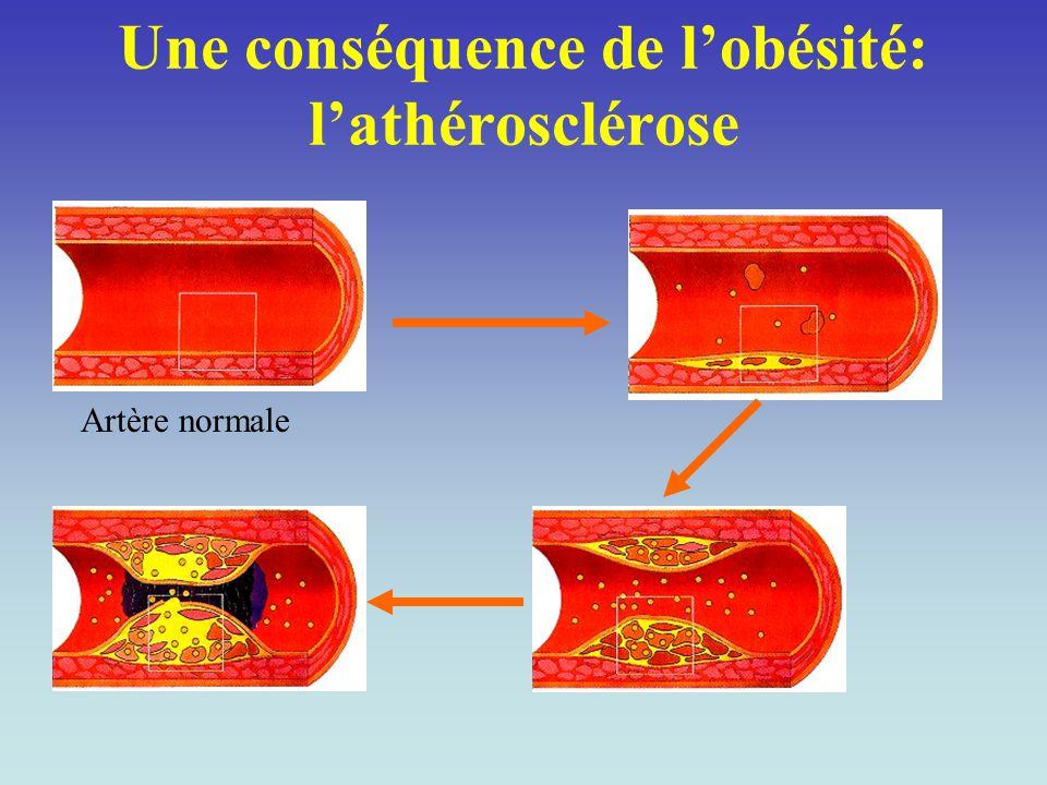 Une conséquence de l'obésité: l'athérosclérose Artère normale