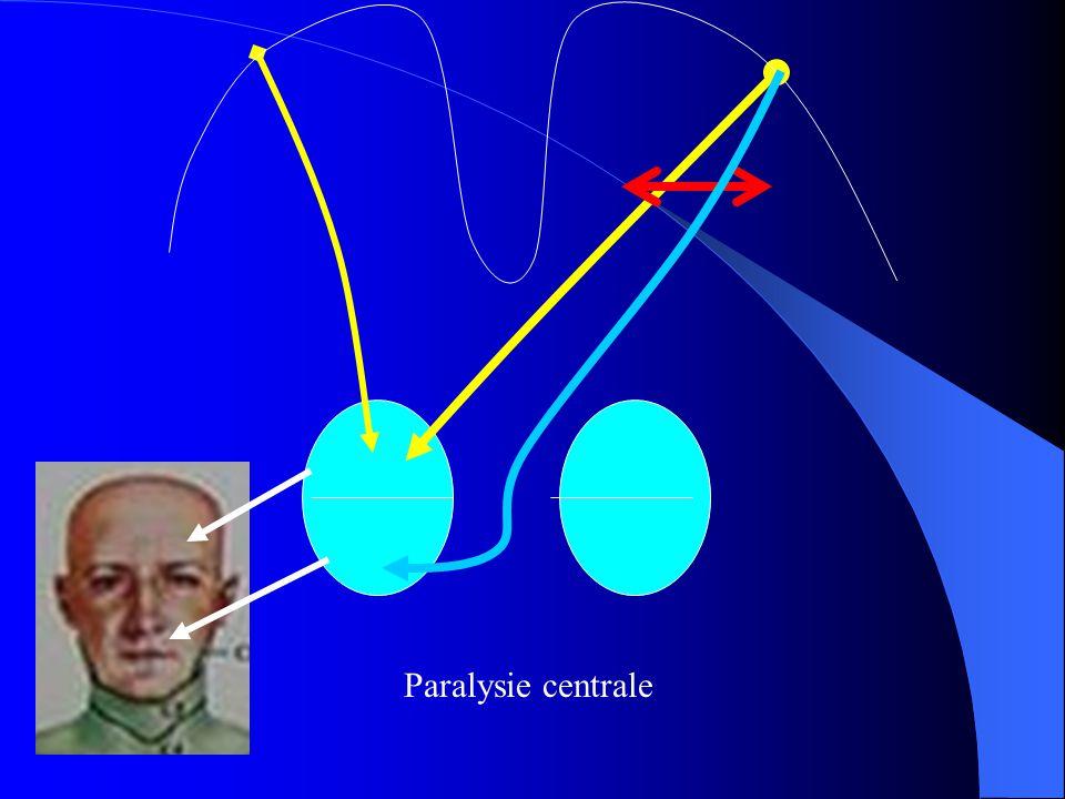 Paralysie centrale
