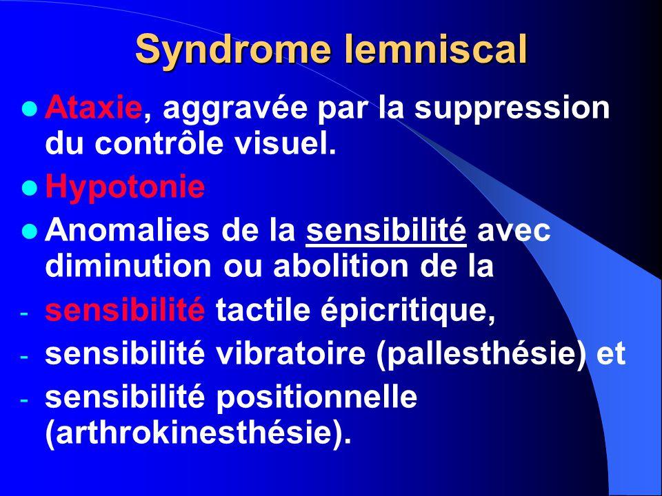 Syndrome lemniscal Ataxie, aggravée par la suppression du contrôle visuel. Hypotonie Anomalies de la sensibilité avec diminution ou abolition de la -