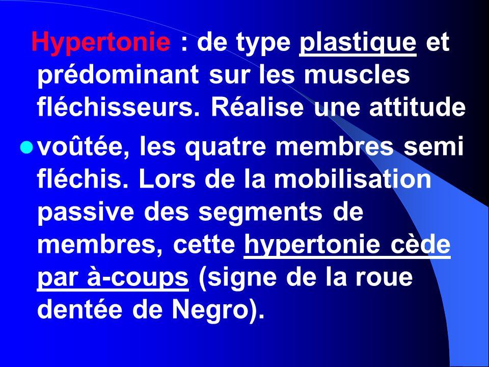 Hypertonie : de type plastique et prédominant sur les muscles fléchisseurs. Réalise une attitude voûtée, les quatre membres semi fléchis. Lors de la m
