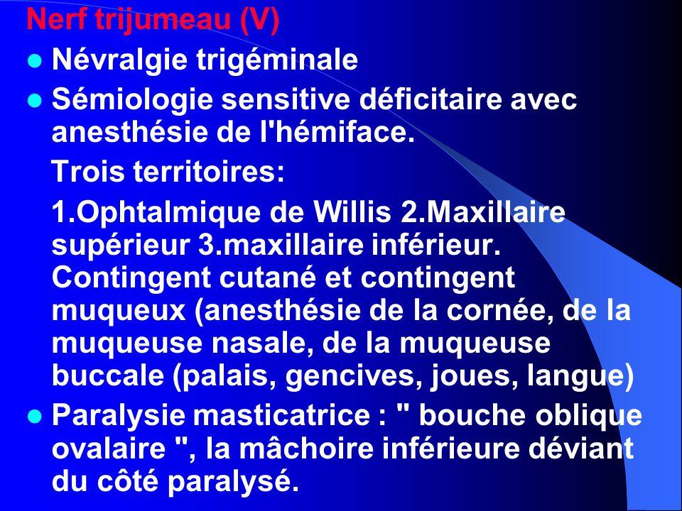 Nerf trijumeau (V) Névralgie trigéminale Sémiologie sensitive déficitaire avec anesthésie de l'hémiface. Trois territoires: 1.Ophtalmique de Willis 2.