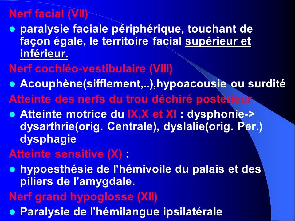 Nerf facial (VII) paralysie faciale périphérique, touchant de façon égale, le territoire facial supérieur et inférieur. Nerf cochléo-vestibulaire (VII