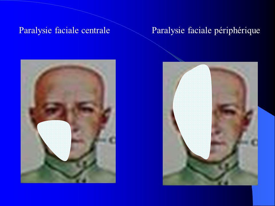 Paralysie faciale centraleParalysie faciale périphérique
