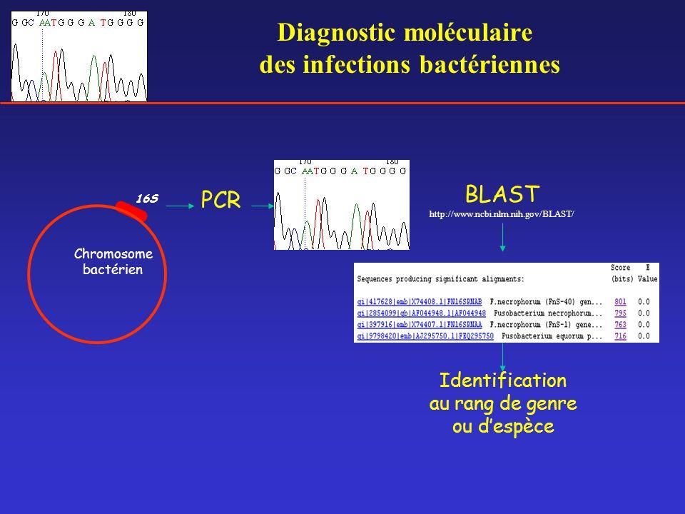 Diagnostic moléculaire des infections bactériennes 16S BLAST http://www.ncbi.nlm.nih.gov/BLAST/ PCR Identification au rang de genre ou d'espèce Chromo